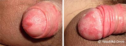 男性の性器真菌カンジダ症