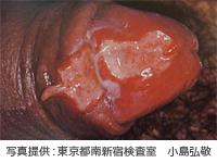 軟性下疳の症状