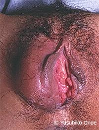 性感染症 淋病